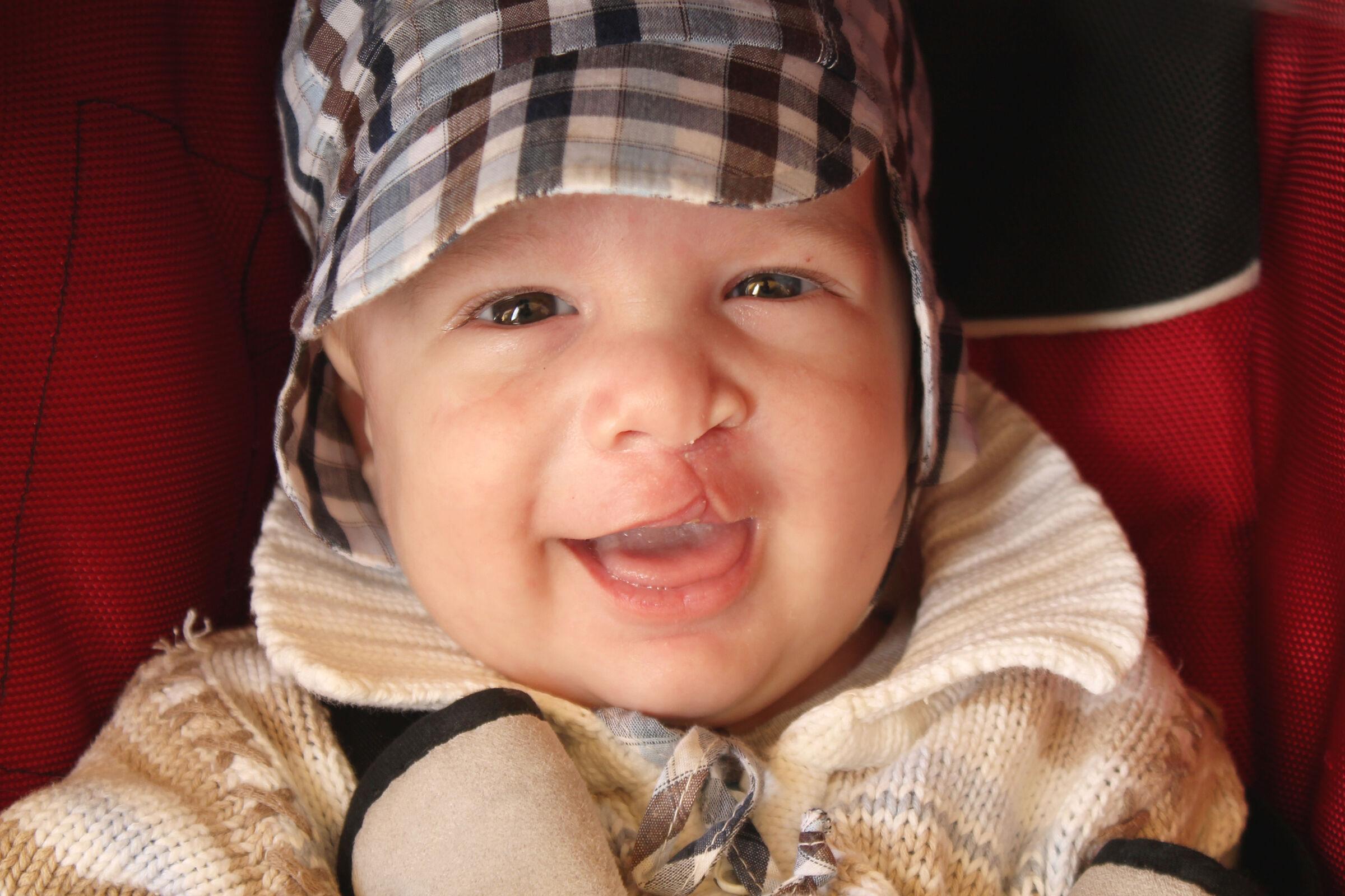 Bebê com lábio leporino