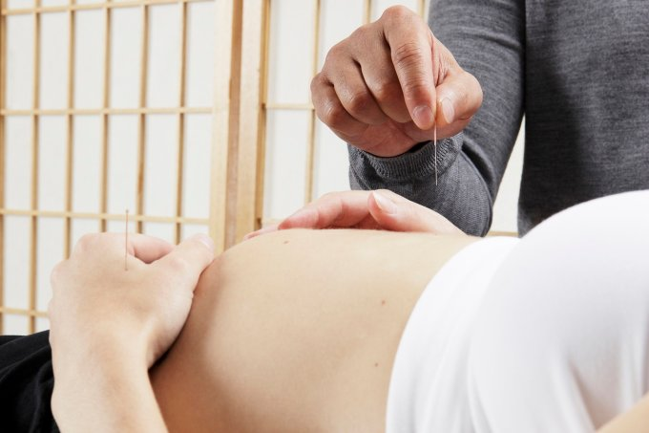 acupuntura na gravidez e durante a amamentação