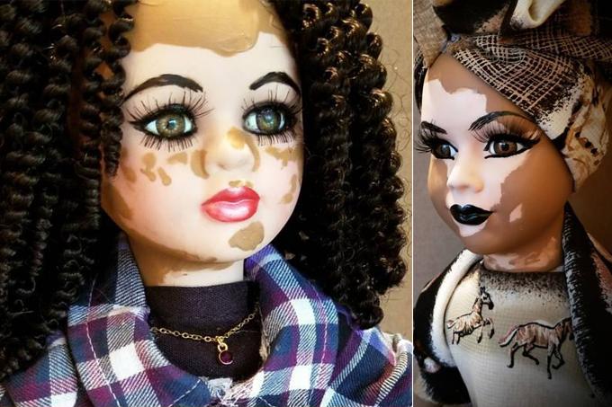 Bonecas com vitiligo destaque
