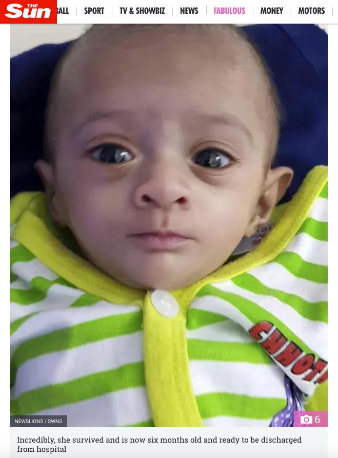 Bebê indiana que nasceu prematura, com menos de 400 gramas