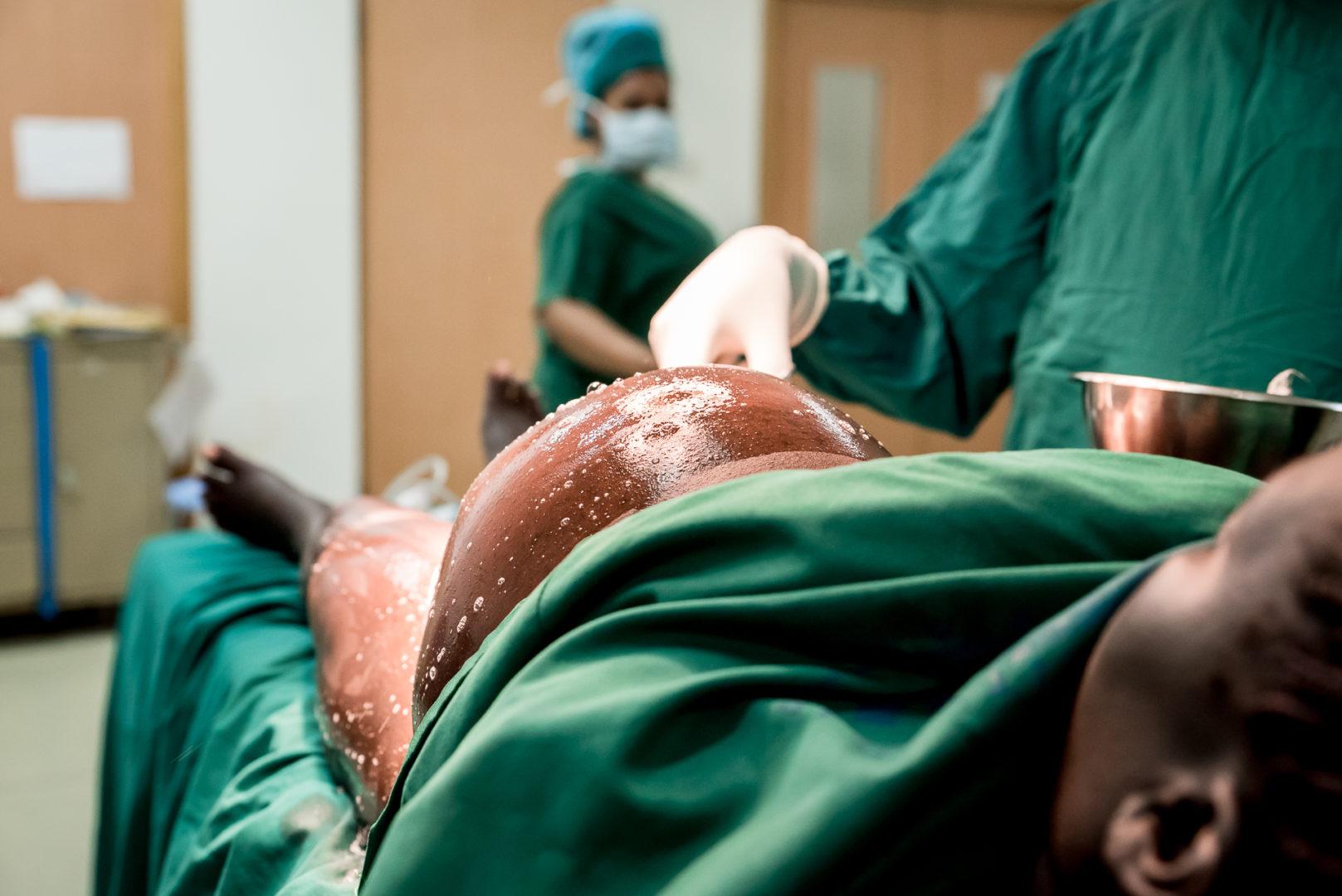 Gestante fazendo cesárea - concurso Birth Becomes Her