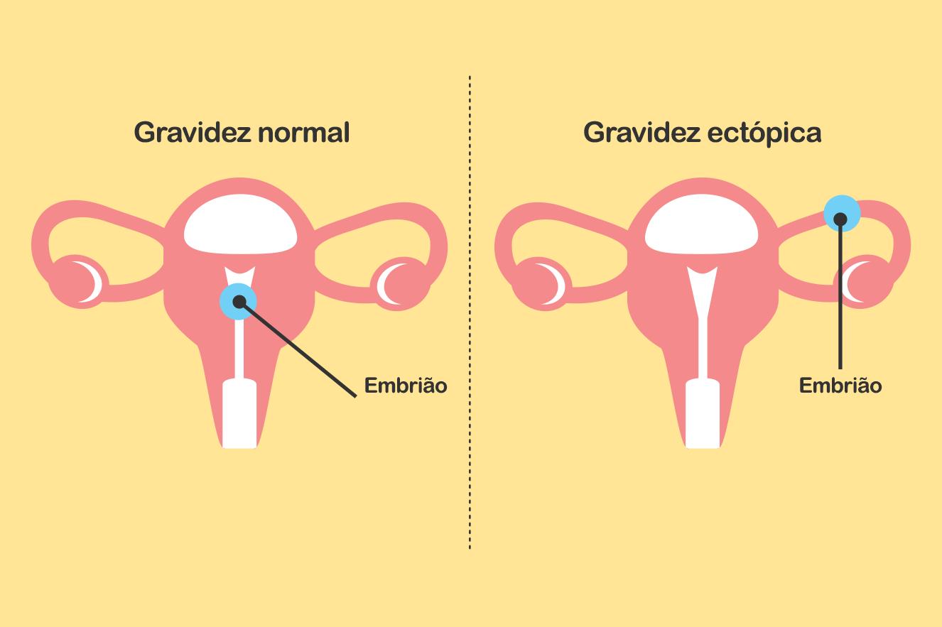 gravidez ectópica
