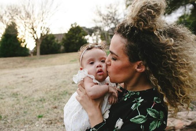 Mãe descobre Síndrome de Down da filha no parto