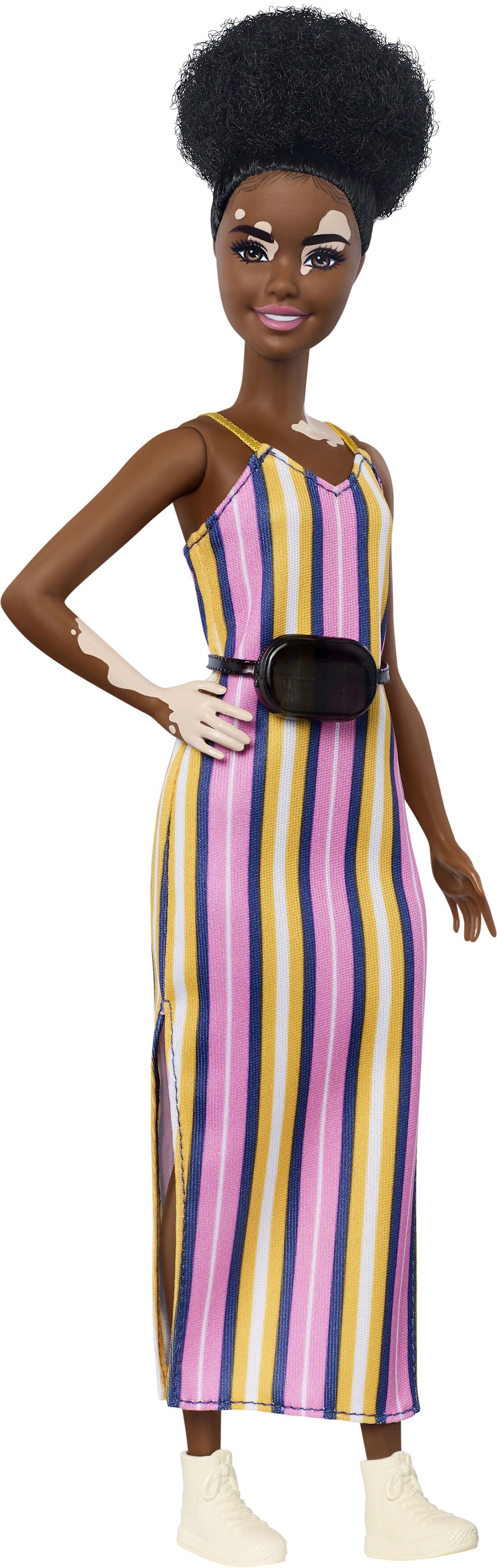 Barbie-lança-bonecas-com-vitiligo-e-careca