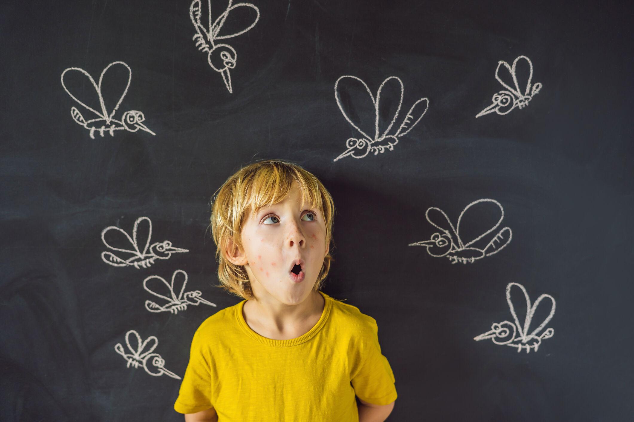 crianca-picada-mosquito
